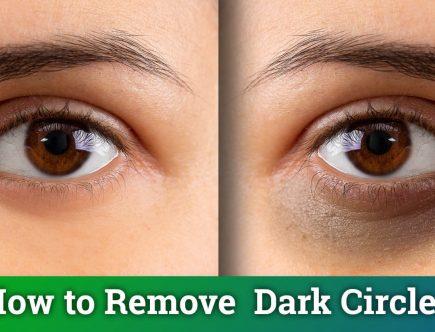 8-Effective-Home-Remedies-to-Treat-Dark-Circles